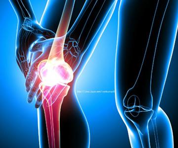 무릎 통증 2.jpg