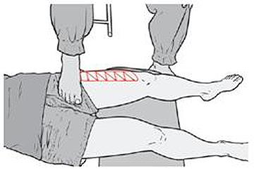 무릎 1.jpg