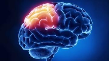 뇌 3.jpg