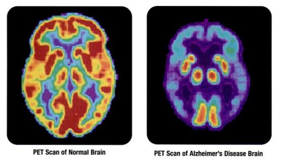 PET_scan-normal_brain-alzheimers_disease_brain.png