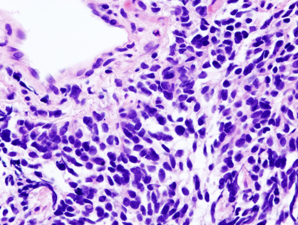 can6-Lung_small_cell_carcinoma_(1)_by_core_needle_biopsy.jpg